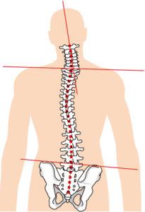 背骨・骨盤の歪み